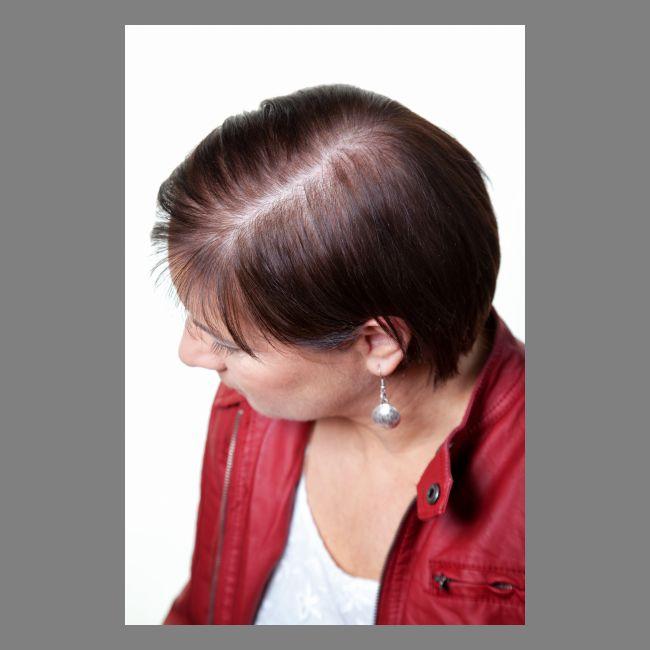 Rassegne di crema contro una perdita di capelli un concetto