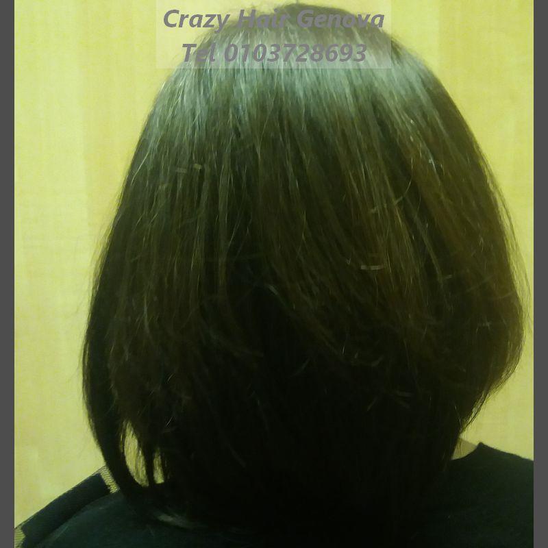 alopecia da radioterapia rimedi_crazy hair parrucche toupets dopo