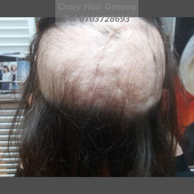 alopecia da radioterapia rimedi_crazy hair parrucche toupets pirma